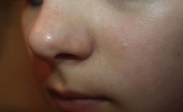кожа после умывания и маски